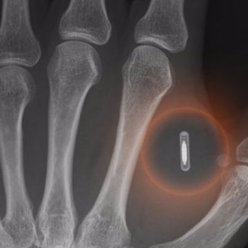 欧米で広がるマイクロチップ皮膚下への移植は人類の進化!?